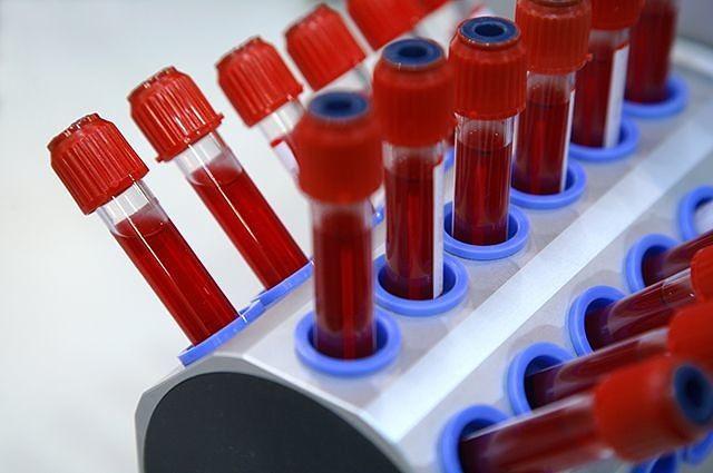 Эритроциты в крови повышены: причины, симптомы, лечение эритроцитов, крови, клеток, красных, кровяных, количество, кислорода, человека, также, происходит, может, много, организме, слишком, некоторых, уровень, случаях, случае, нужно, например